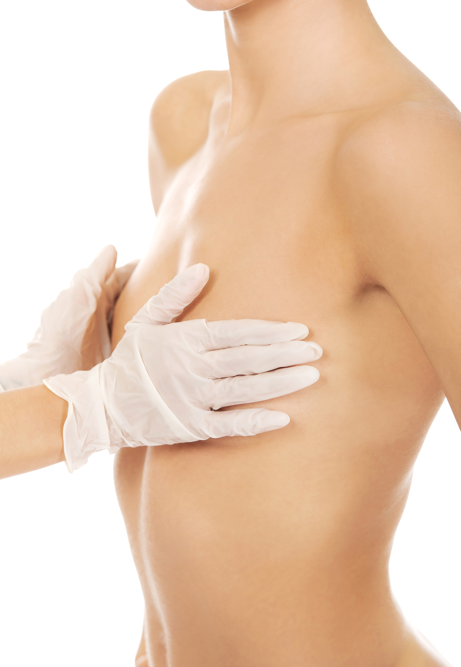 Breast Augmentation Consultation